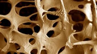 020810-home-osteoporose-original.jpeg