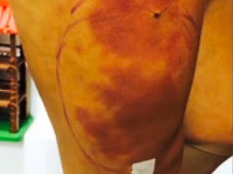 <br>      Andressa Urach mostrou o problema que teve com o hidrogel na perna