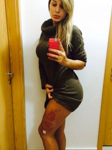Andressa Urach mostrou o problema que teve com o hidrogel na perna