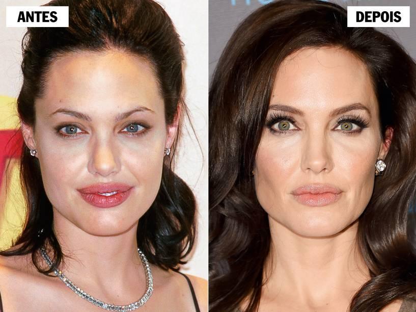 ANGELINA JOLIE - Antes das operações preventivas contra o câncer de mama e de ovário, a atriz recorreu ao bisturi para ressaltar as maçãs do rosto