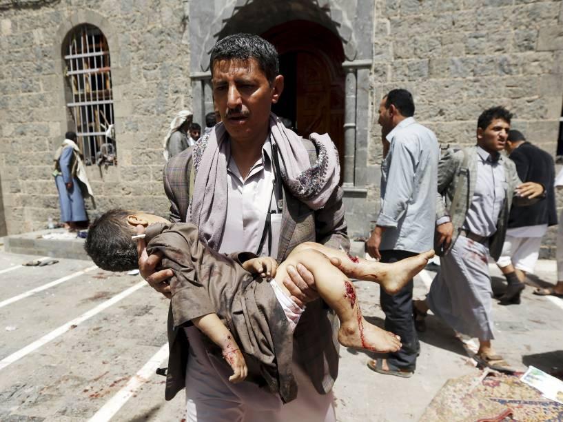 Menino ferido após ataque contra a mesquita de Sana, no Iêmen