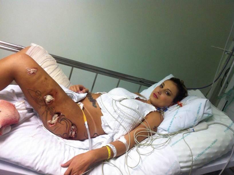Andressa Urach foi submetida a uma drenagem cirúrgica por causa de uma infecção, decorrência de complicações de uma aplicação de hidrogel