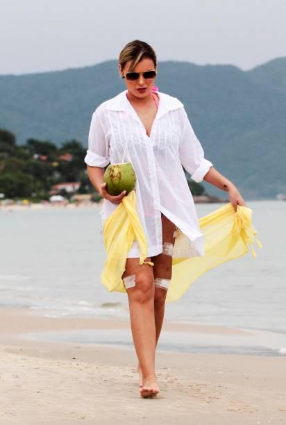 Andressa Urach caminha em uma praia de Florianópolis com curativos nas pernas