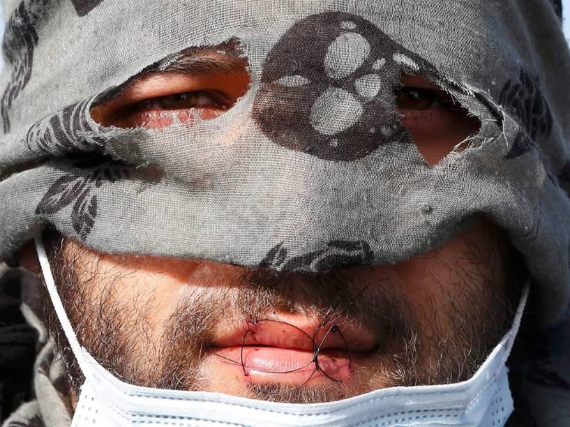 Manifestante costura a boca durante desapropriação de imigrantes em Calais, na França