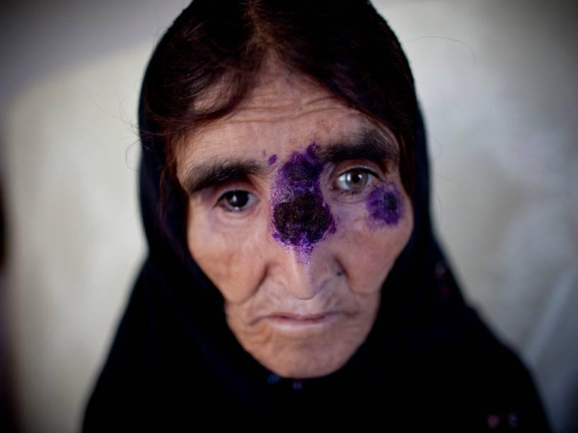 Mulher afegã recebe tratamento para a leishmaniose, doença que causa graves feridas na pele, em um hospital no Afeganistão