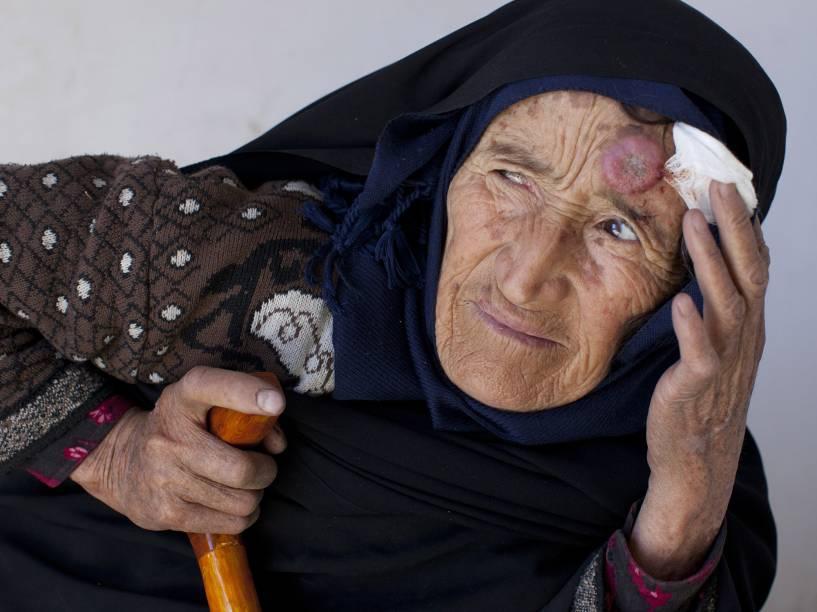 População no Oriente Médio sofre com a leishmaniose, doença de pele transmitida por mosquitos, que causa feridas na pele