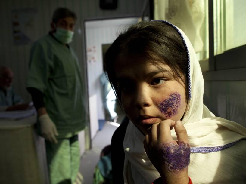 Garota recebe tratamento em uma clínica especializada para o tratamento de leishmaniose, no Afeganistão