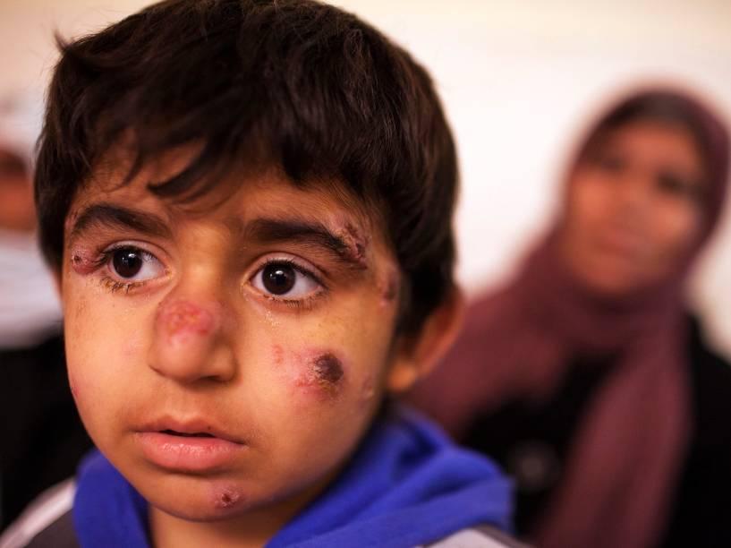 Garoto iraquiano contrai leishmaniose e aguarda tratamento