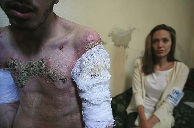 Em Damasco, na Síria, a atriz acompanha curativos de um refugiado iraquiano.