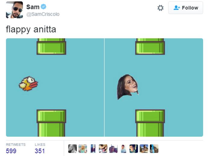 Após preenchimento labial, Anitta é comparada ao passarinho do jogo Flappy Bird