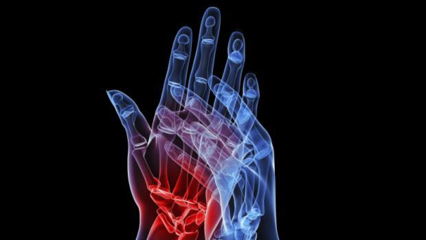 artrite-20120911-original.jpeg