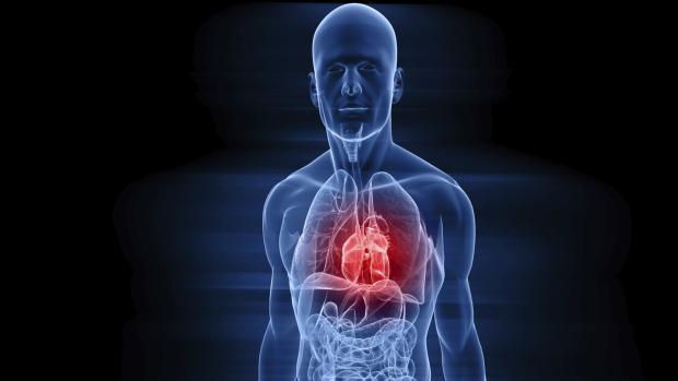 ataque-do-coracao-infarto-20110608-original.jpeg