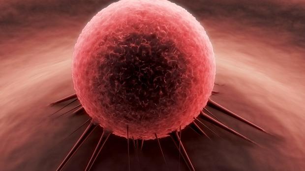 cancer-prostata-braquiterapia-20120502-original.jpeg