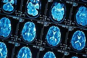 cerebros-epilepsia-original.jpeg