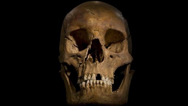 <p>Marcas no crânio de Ricardo III mostram que ele foi morto por golpes na cabeça</p>