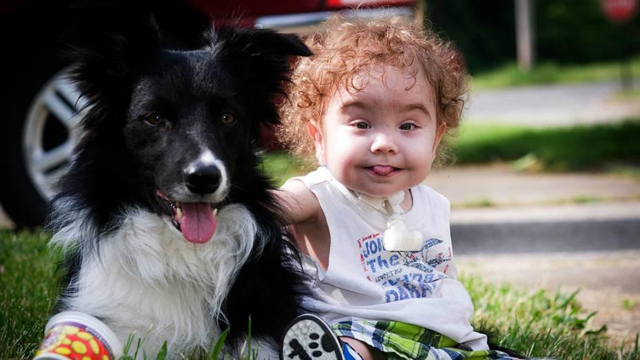 Kaiba Gionfriddo, de um ano e sete meses, nasceu com uma doença congênita e sofria com parada respiratória todos os dias. Depois de receber uma tala feita a partir de uma impressora 3D, passou a respirar normalmente