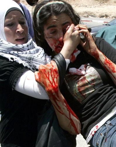 Ativista é ferida durante protesto contra Israel, na Cisjordânia.