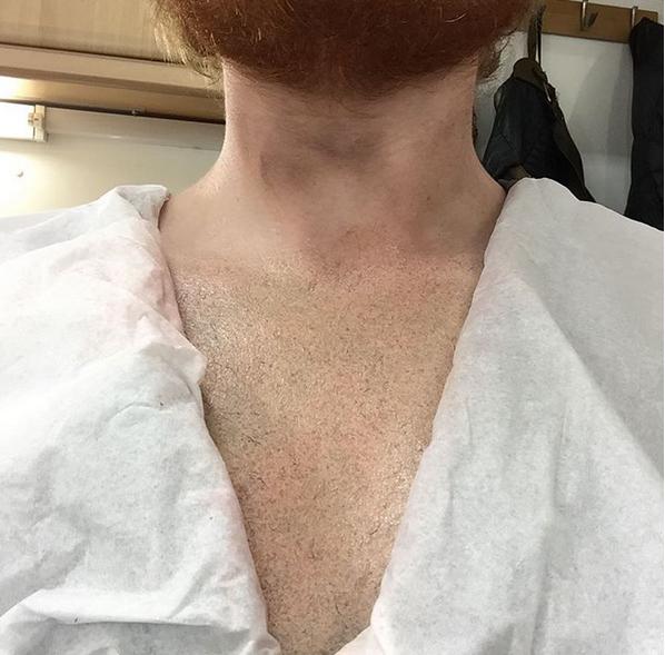 Ed Sheeran: depois do leão-mico, cantor exibe peitoral sem tatuagem. Era brincadeira
