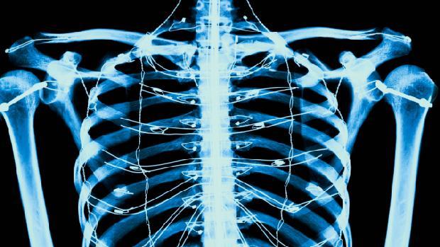 esqueleto-original.jpeg
