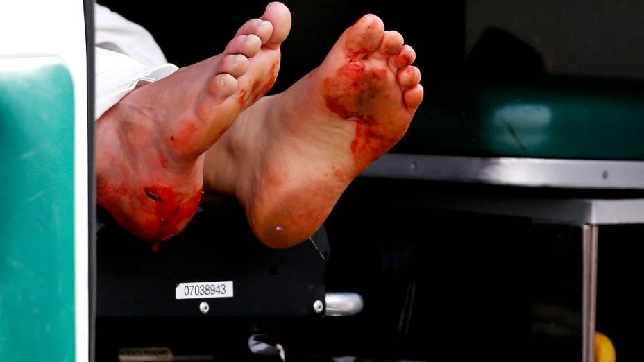 Pés sujos de sangue, após a explosão na maratona de Boston que deixou duas pessoas mortas