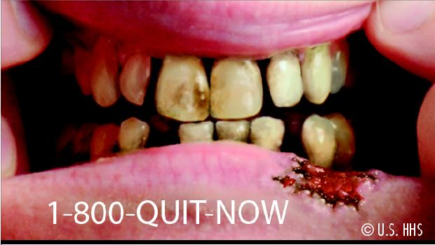 Advertência: fumar causa câncer
