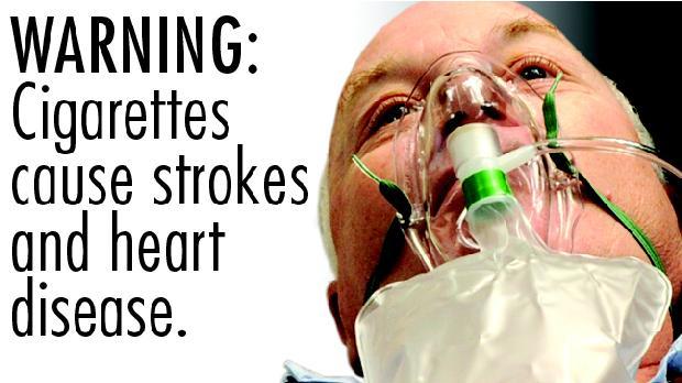 Advertência: fumar pode causar derrame e doenças cardíacas