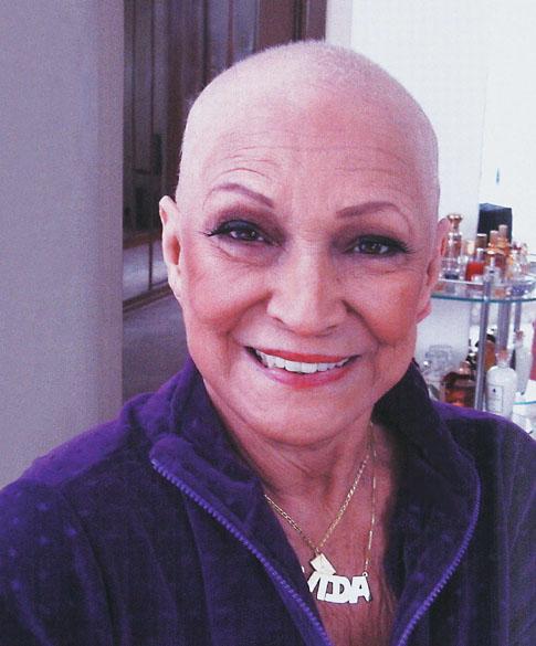 Hebe Camargo, apresentadora de TV, careca devido ao tratamento de quimioterapia