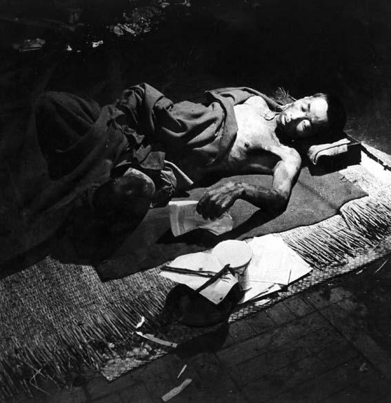 Um mês após a explosão da bomba em Hiroshima, uma vítima é atendida em hospital improvisado, montado em um banco local. Até o final de 1945, cerca de 140.000 pessoas morreram em decorrência dos efeitos da radiação