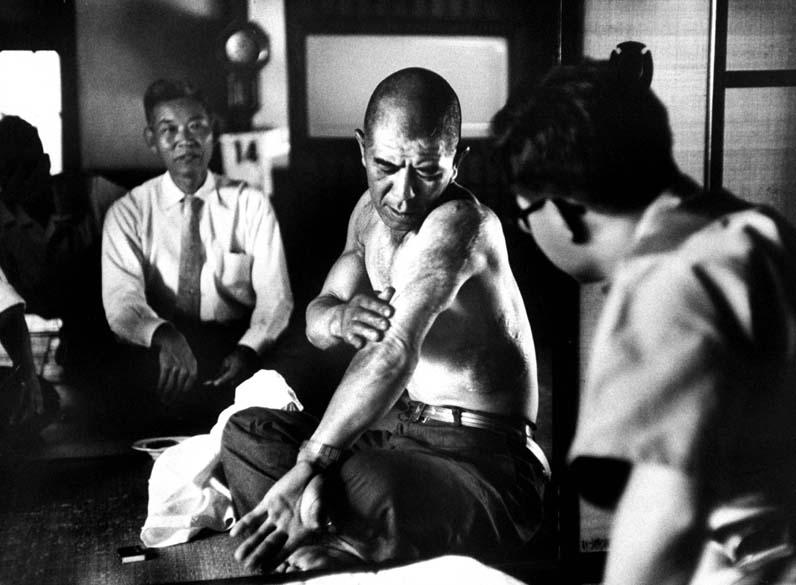 Homem mostra queimaduras sofridas na explosão da bomba atômica em Hiroshima. Este foi o ferimento mais comum dos sobreviventes, juntamente com as doenças causadas pela radiação, como a leucemia e outros tipos de câncer