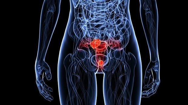 hpv-cancer-colo-utero-cervical-original.jpeg