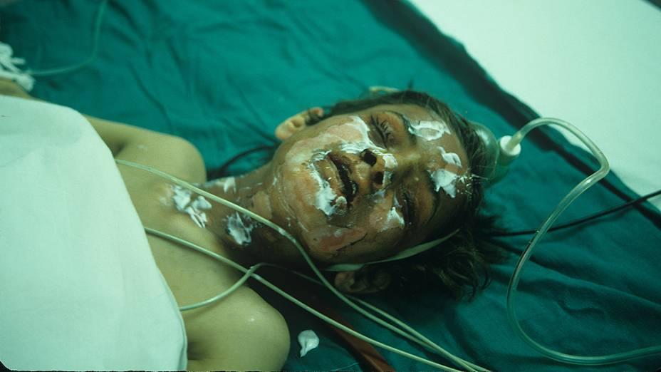 Vítima do ataque com gás na cidade iraquiana de Halabja, em 1988. Entre 2.000 e 5.000 civis curdos morreram