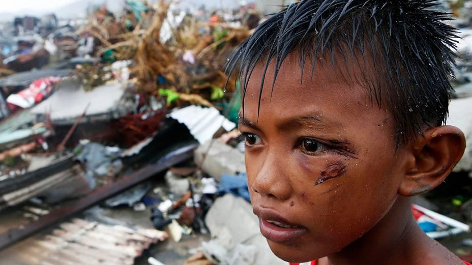 Um menino ferido durante a passagem do supertufão na cidade de Tacloban permanece nas ruínas da casa onde morava com a família