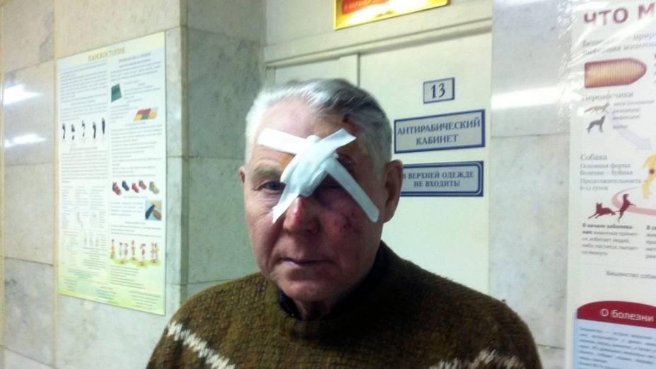 <p>Homem ferido por queda de meteorito em Tcheliabinsk, na Rússia</p>