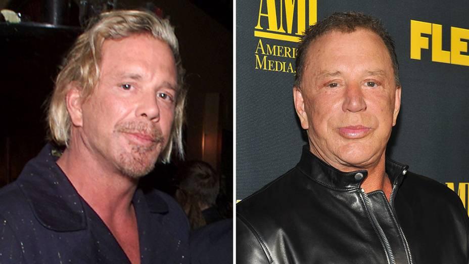 """<br> No início dos anos 1990, o ator Mickey Rourke (<em>Homem de Ferro 2</em>) passava por um período de baixa no cinema e quis retomar a carreira de boxeador, o que lhe deixou com um nariz quebrado e uma das maçãs do rosto comprimida. A fim de reconstruir a aparência de antes, Rourke realizou cirurgias plásticas que ele mesmo descreveu como uma """"bagunça"""". <br>"""