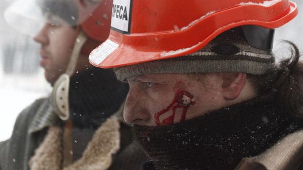 Homem ferido durante confrontos entre manifestantes pró-Europa e policiais