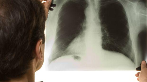 tuberculose2-2012-12-31-original.jpeg