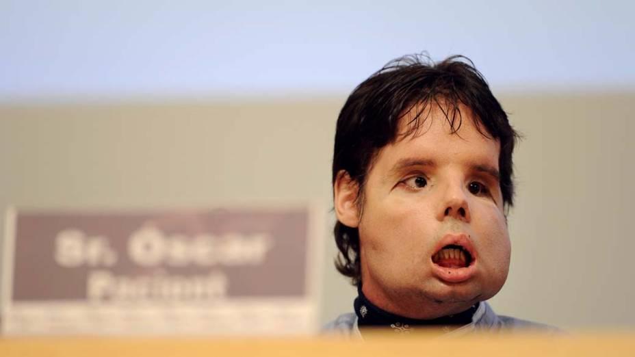 Em Madri, o espanhol Oscar, de 31 anos, que passou por um transplante de rosto no fim de março, apareceu em público pela primeira vez. Ainda falando com dificuldade, durante entrevista coletiva concedida no hospital, Oscar agradeceu aos médicos e à família.