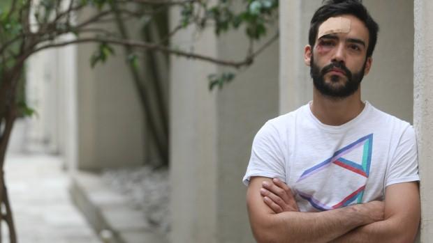 O estudante de Direito André Baliera, após agressão em rua movimentada de São Paulo