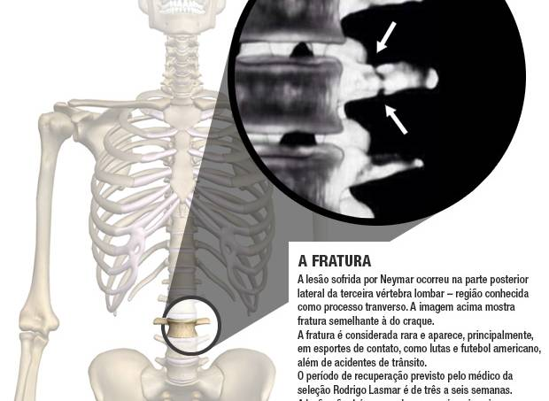 alx_fratura-neymar_original.jpeg