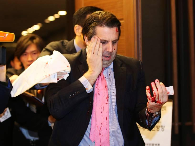 Embaixador dos Estados Unidos na Coreia do Sul Mark Lippert, foi atacado por um homem não identificado durante um fórum público no centro de Seul - 04/03/2015