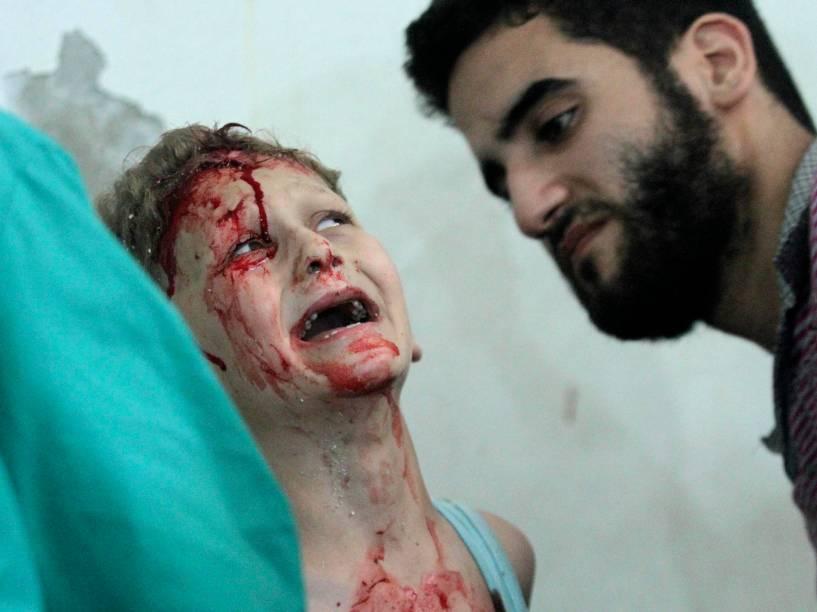 Em julho, garoto foi socorrido após ataque aéreo de forças leais ao ditador sírio Bashar Assad