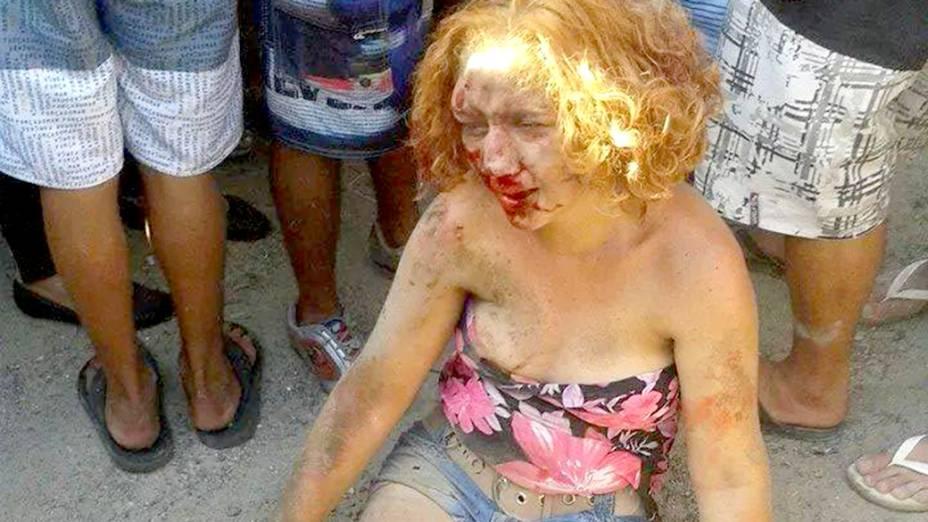 Foto mostra Fabiane Maria de Jesus após ser espancada