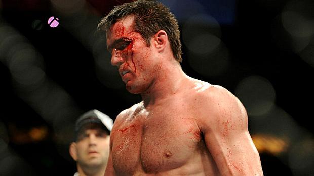 Chael Sonnen foi finalizado por Anderson Silva no UFC 119, em 2010