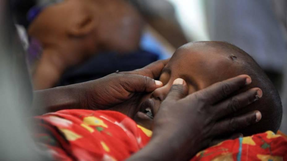 Criança morre de desnutrição em hospital na cidade de Mogadíscio, Somália