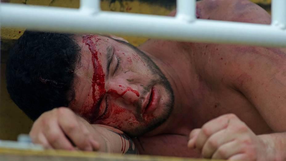Torcedor ferido após briga entre torcidas na partida entre Atlético-PR e Vasco, válida pela última rodada do Campeonato Brasileiro 2013, na Arena Joinville