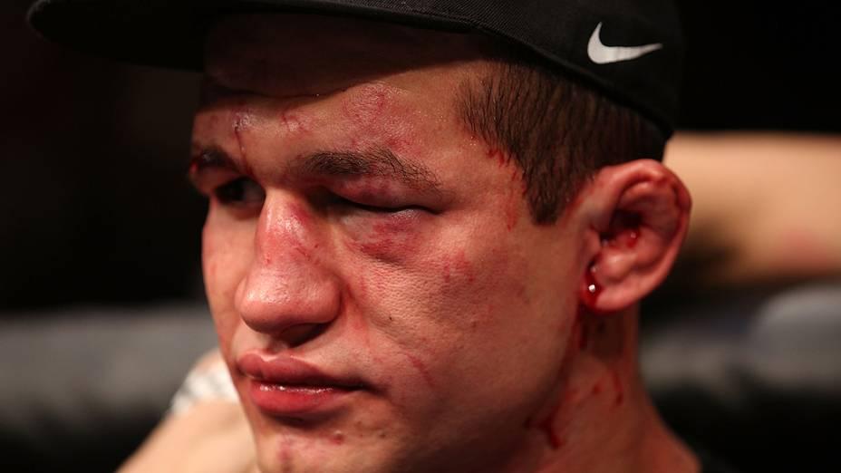 UFC 166: Júnior Cigano após ser derrotado por Cain Velasquez
