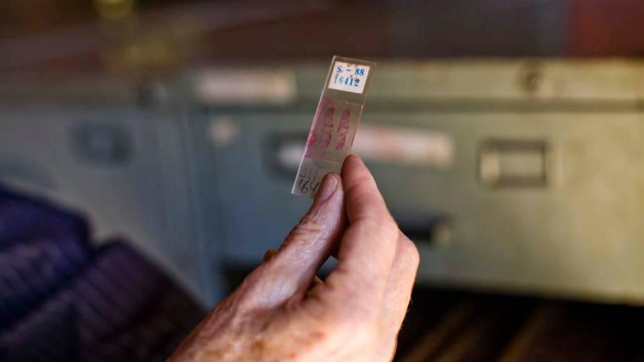 A legislação manda que os tecidos utilizados em exames sejam guardados por cinco anos. Dr. Mattosinho os preservou durante toda a vida