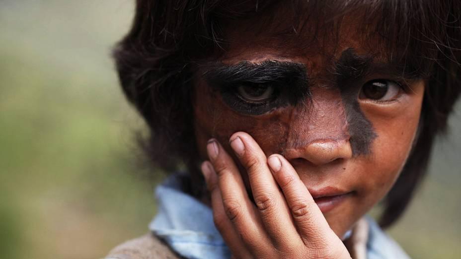Menina posa para fotógrafos antes de outra cirurgia para retirar uma grande mancha com cabelos que cobrem seu rosto em um ponto delicado que pode levar ao câncer, em Katmandu, Nepal