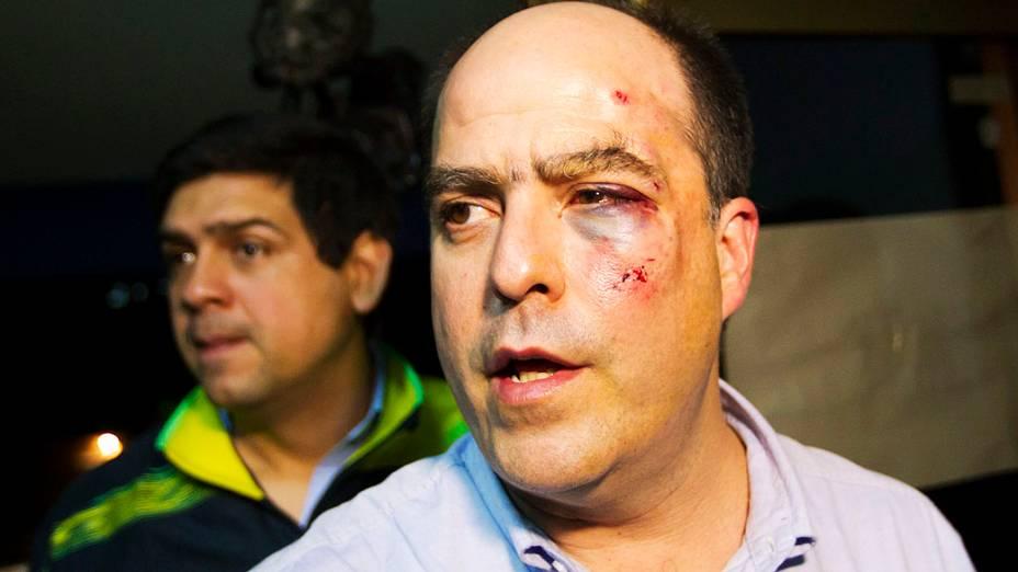 O deputado venezuelano Julio Borges, do bloco de oposição ao chavismo, mostra ferimentos após agressão na Assembleia Nacional