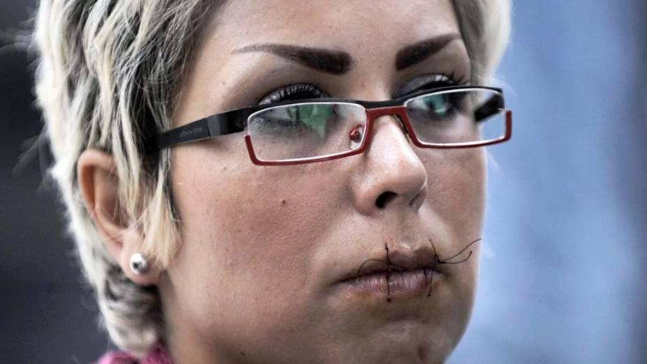 Iraniana costura a boca em greve de fome na Grécia em protesto contra a demora na autorização de asilo político